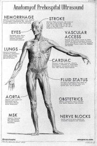 Anatomy of prehospital ulttasound